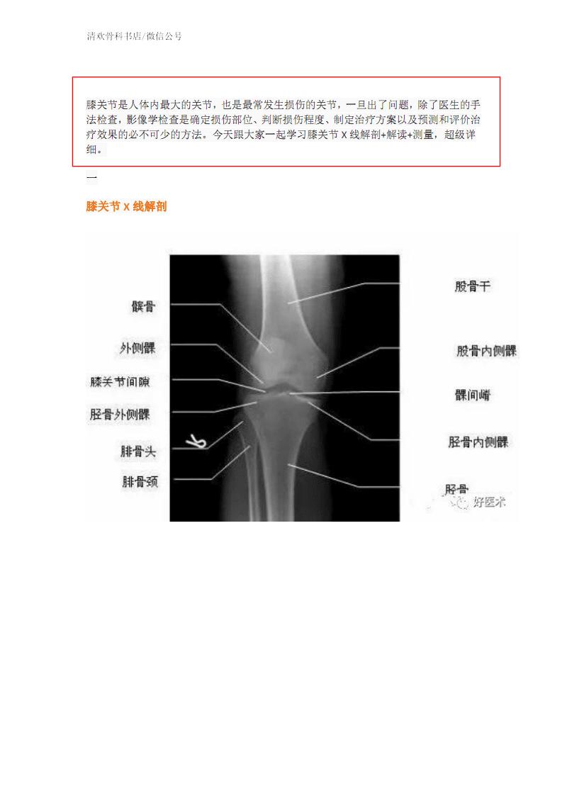 膝关节X线解剖及测量技巧.pdf