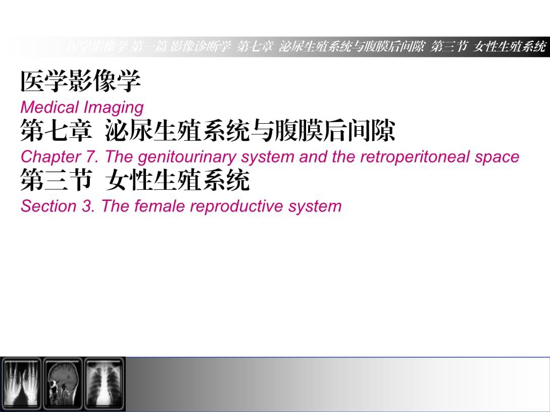医学影像学(第7版)第7章第3节女性生殖系统.ppt