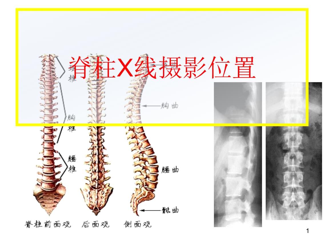 脊柱X线的摄影技术.ppt