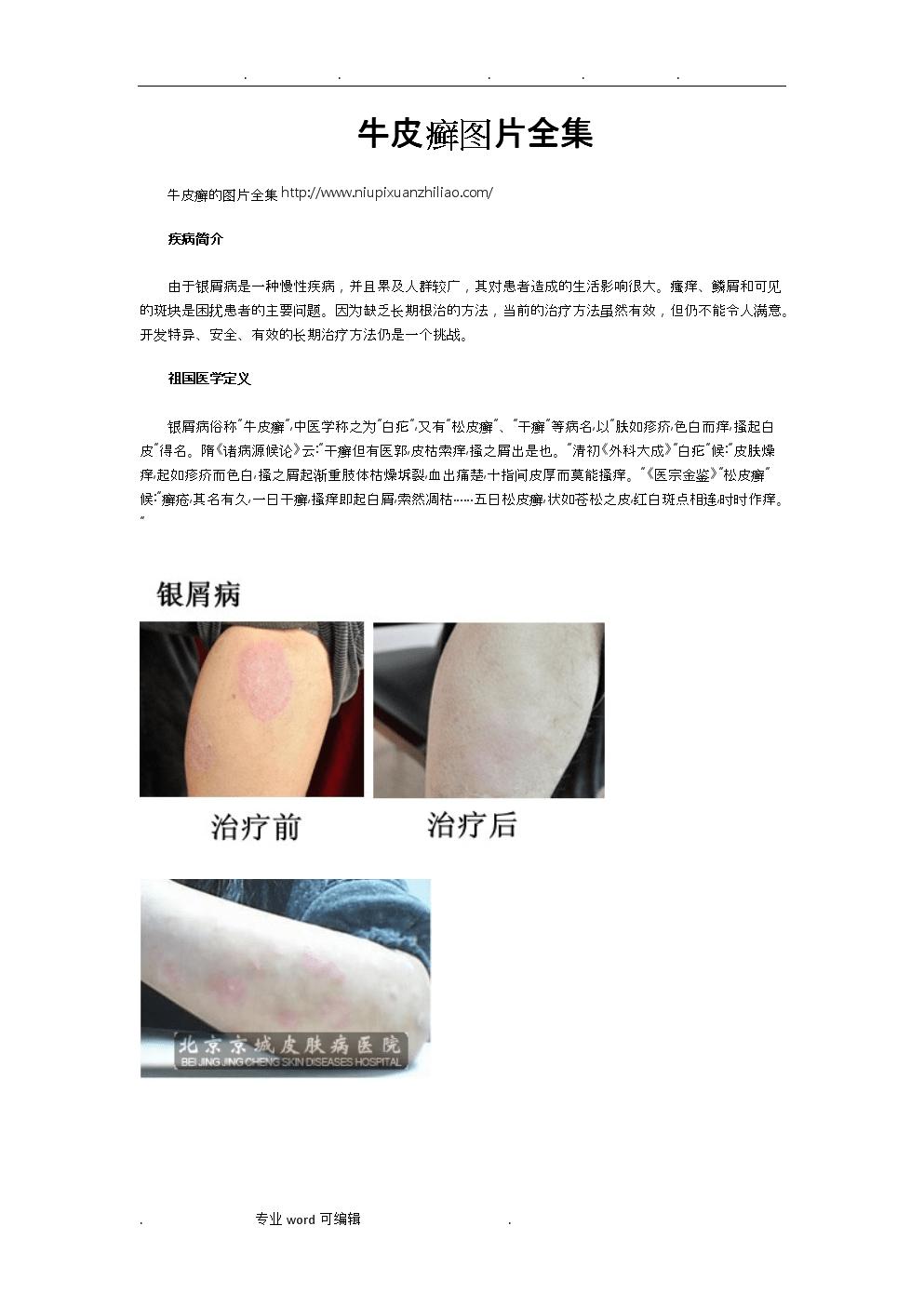 牛皮癣图片全集.doc