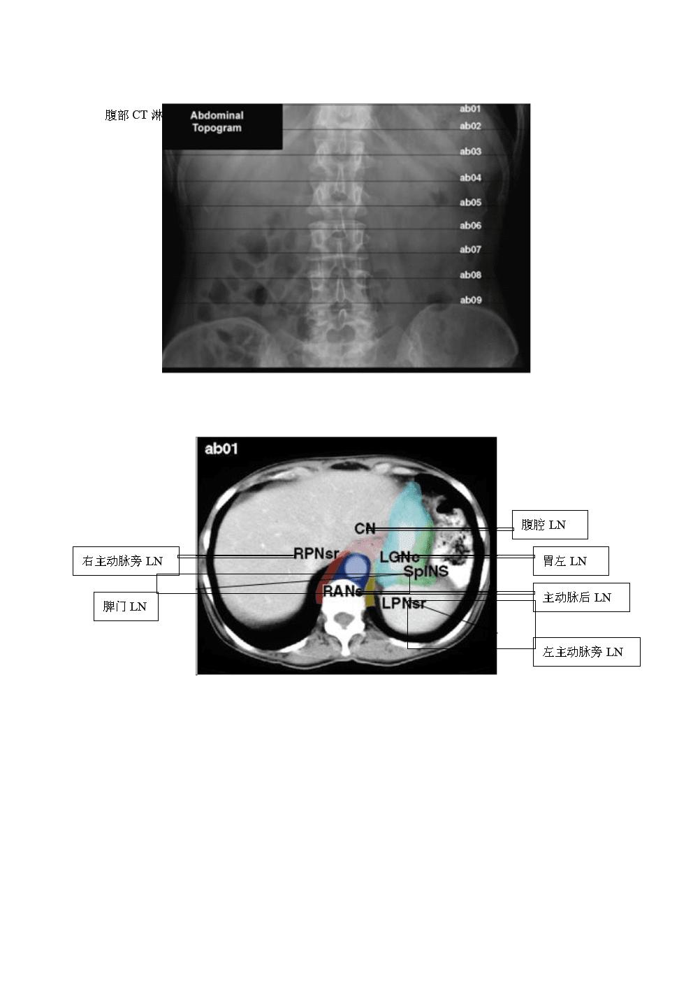 腹部CT淋巴结分区图谱(中文标注).docx