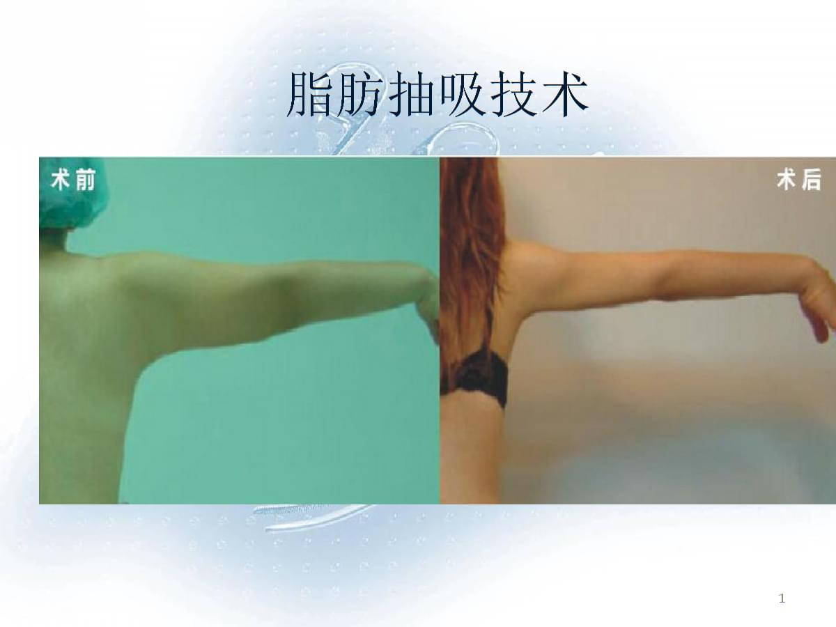 抽脂减肥知识大全PPT演示课件.ppt